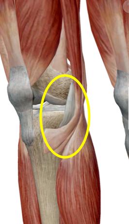 膝 の 内側 が 痛む